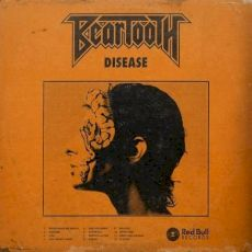 Beartooth-disease